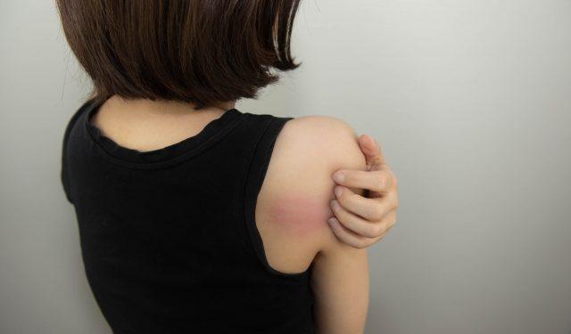 妊娠中の辛い痒みや発疹の原因は? 〜その種類と対応方法について〜